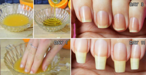 Natural Home Remedies for Nail Growth Fast And Effectively