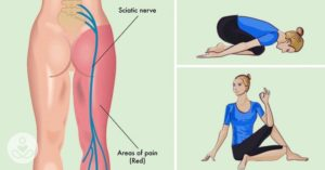 8 Easy Yoga Poses to Help Relieve Sciatica and Lower Back Pain In 30 Minutes