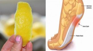 A Peel of Lemon Can Remove Joint Pain In No Time