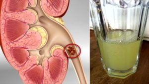 Boost Your Kidney Health With Only Half A Cup Of This Natural Drink!