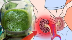 How To Cleanse Your Kidneys Almost Instantly Using Only This Natural Home Drink